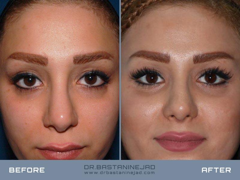 جراحی زیبایی ترمیمی بینی