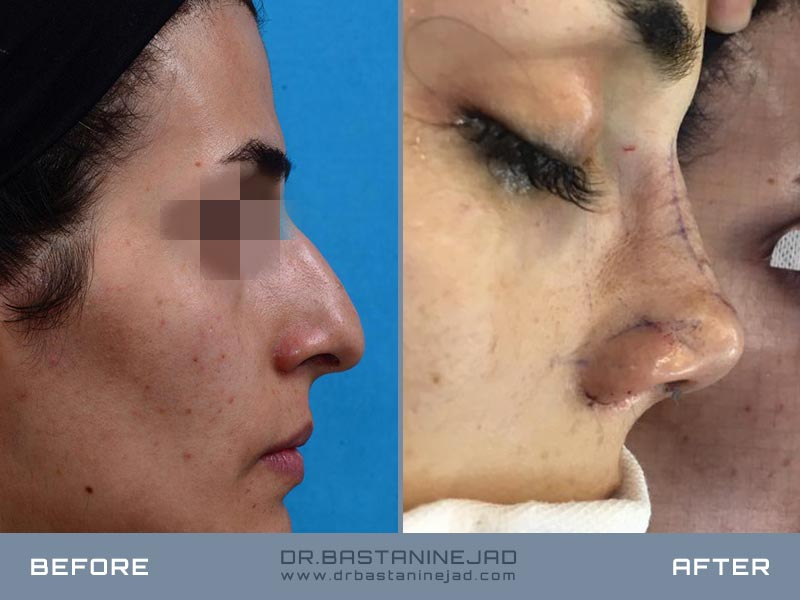 Broad nose surgery