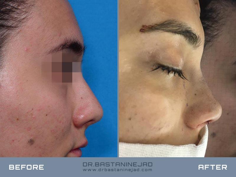 Flesh nose surgery