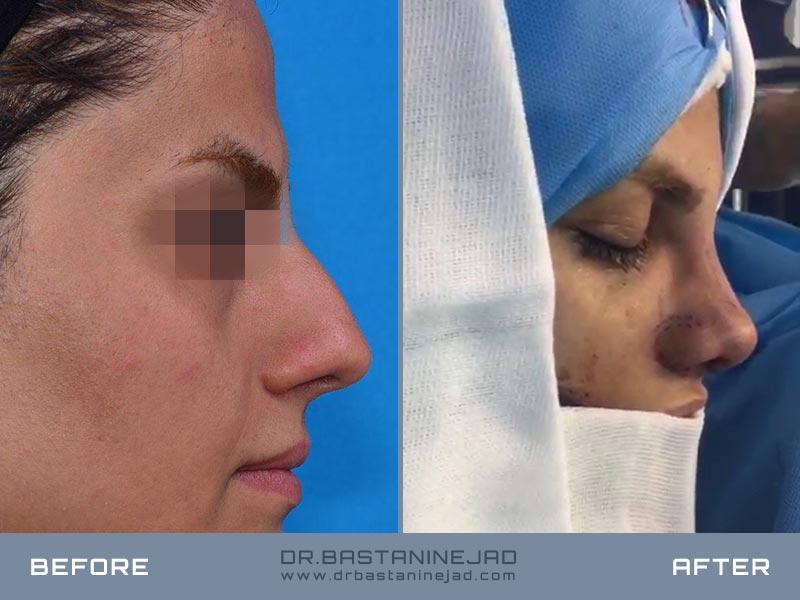 جراحی بینی گوشتی با قاعده و قسمت استخوانی پهن