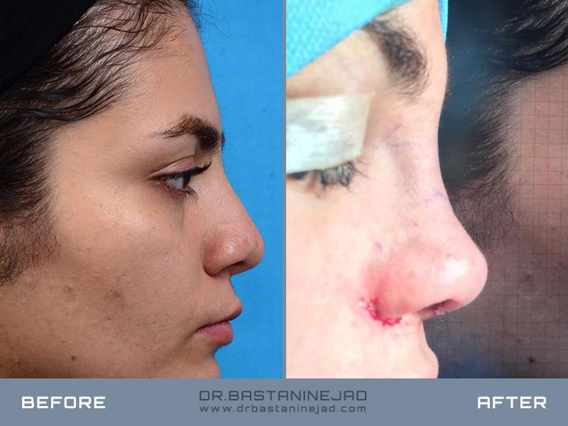 Somatic Nose Surgery