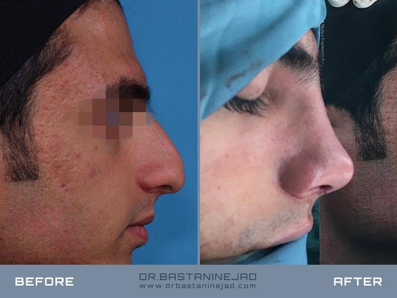 جراحی زیبایی بینی پیچدار