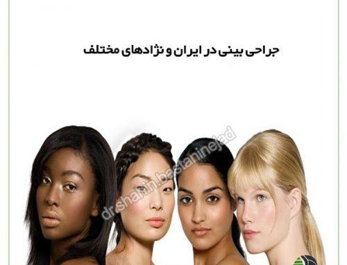 جراحی بینی در ایران و نژادهای مختلف