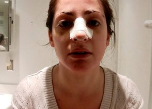 جراحی بینی و چسب زدن بعد از عملبینی