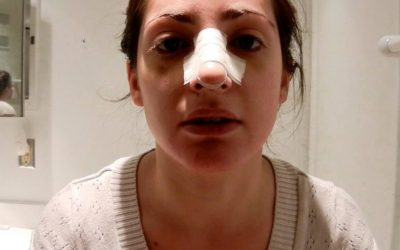 جراحی بینی و چسب زدن بعد از عمل