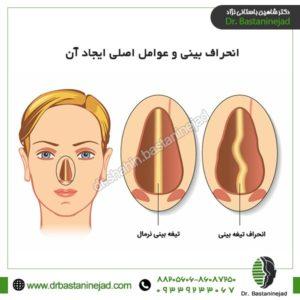 انحراف بینی و عوامل اصلی ایجاد آن