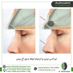 جراحی بینی و ترمیم تیغه سوراخ بینی