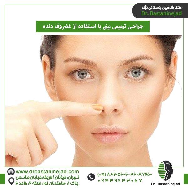 جراحی ترمیمی بینی با استفاده از غضروف دنده