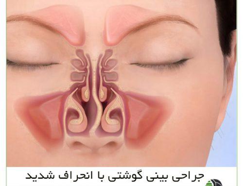 جراحی بینی گوشتی با انحراف شدید