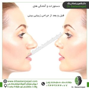 دستورات و آمادگی های قبل و بعد از جراحی زیبایی بینی