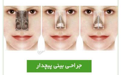جراحی بینی پیچدار