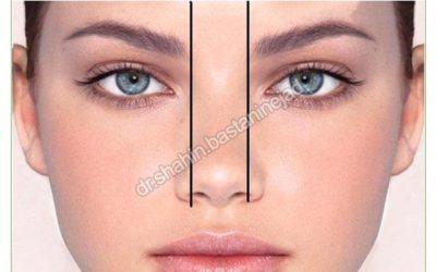 جراحی بینی با نوک بسیار پهن