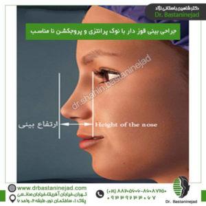 جراحی بینی قوز دار با نوک پرانتزی و پروجکشن نا مناسب