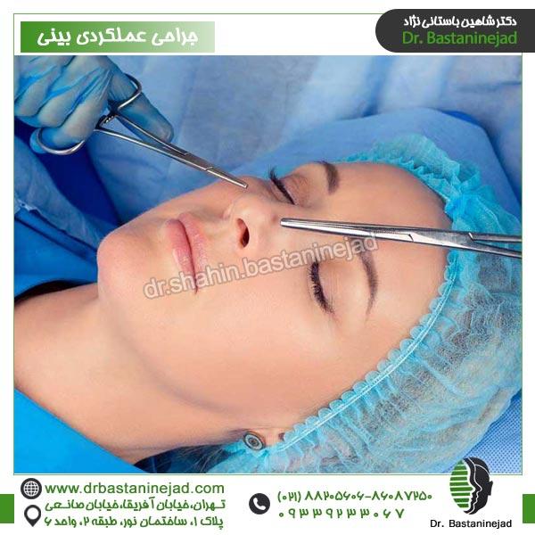 جراحی عملکردی بینی