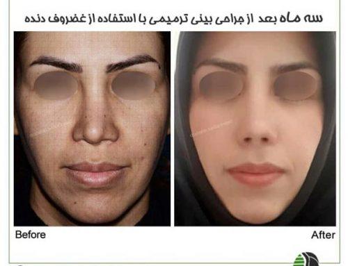 جراحی ترمیمی بینی در تهران