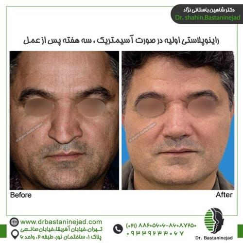 جراحی بینی 110