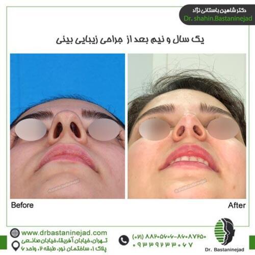 جراحی بینی 117