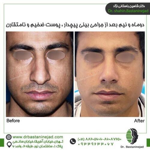 جراحی بینی 129