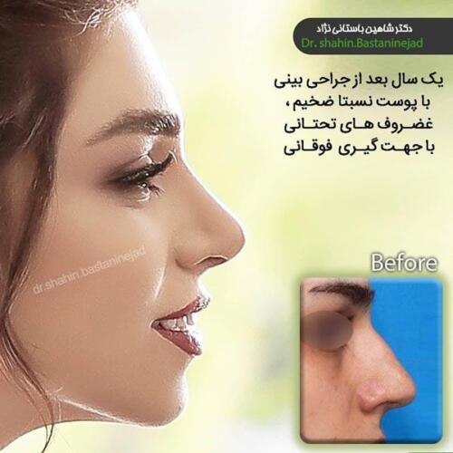 جراحی بینی 136