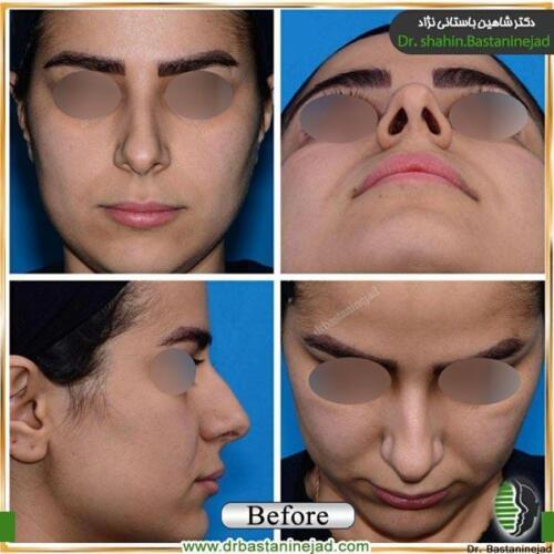 جراحی بینی 140
