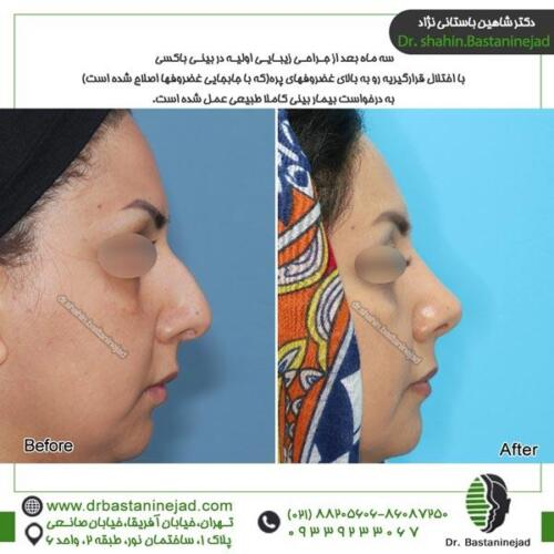 جراحی بینی 88