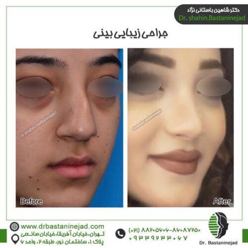 جراحی بینی 91