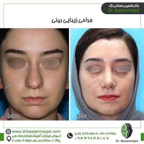 جراحی بینی 96